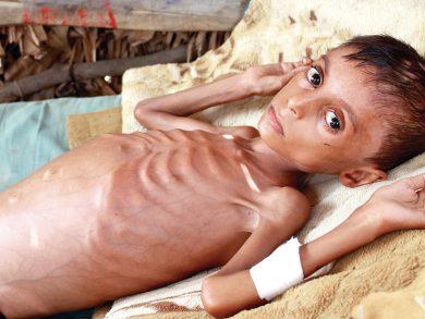 Photo of غوتيريش يحذر من خطر مجاعة وشيك في اليمن